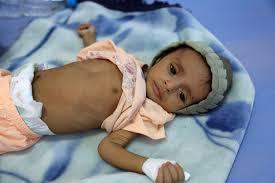 مجاعة تهدد مليون طفل إضافي في اليمن