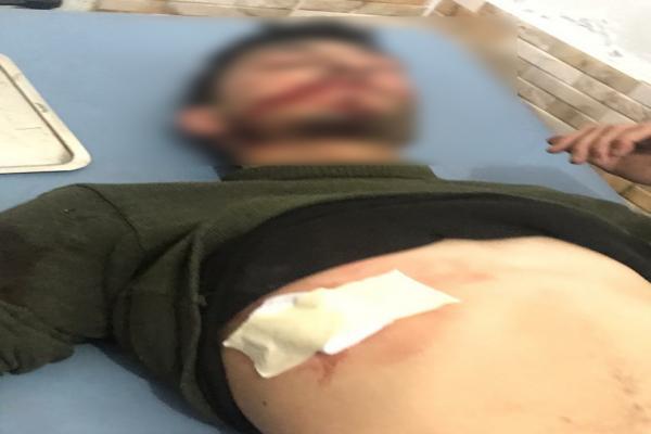 قصف تركي يقتل ضابطاً وعسكريا في القوات الحكومية السورية