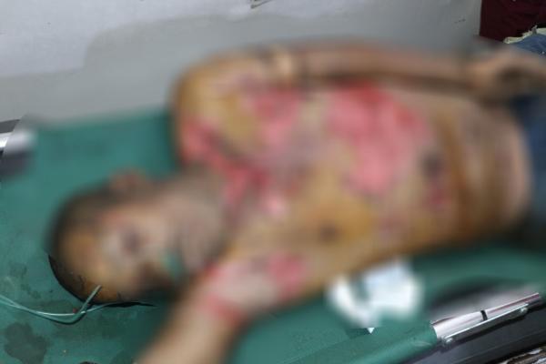 حرائق جيش الاحتلال المفتعلة تودي بحياة مواطن وتصيب آخر بجروح بليغة