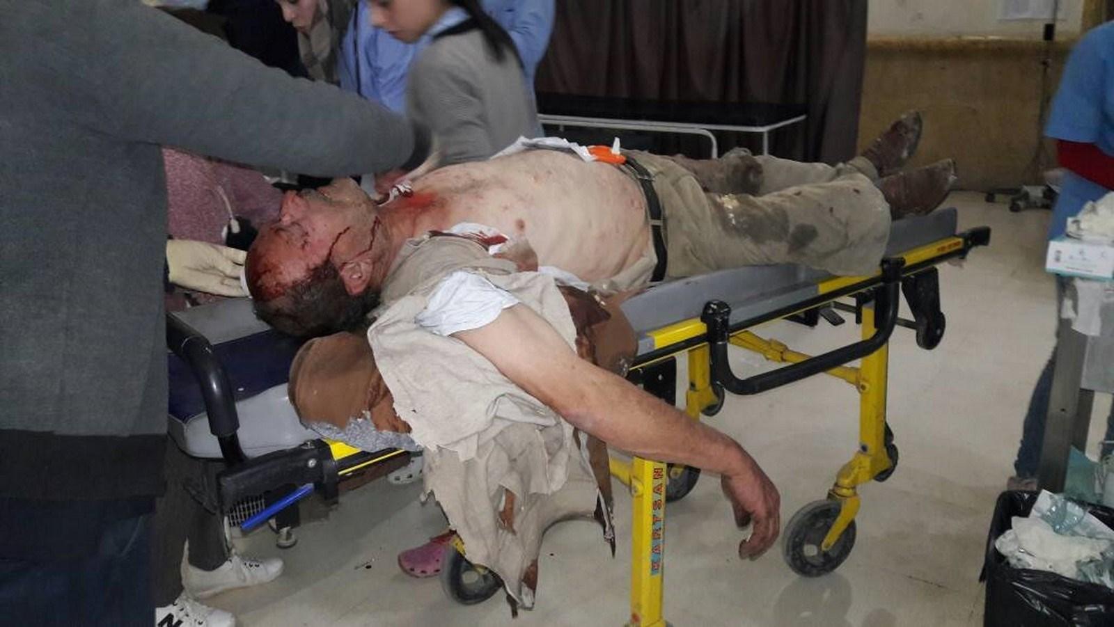 Turkish occupation barbarity in Afrin-3