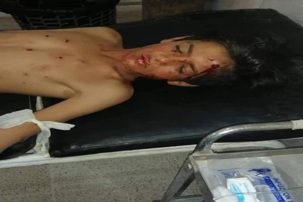 2 children injured in mine explosion in Deir ez-Zor eastern countryside