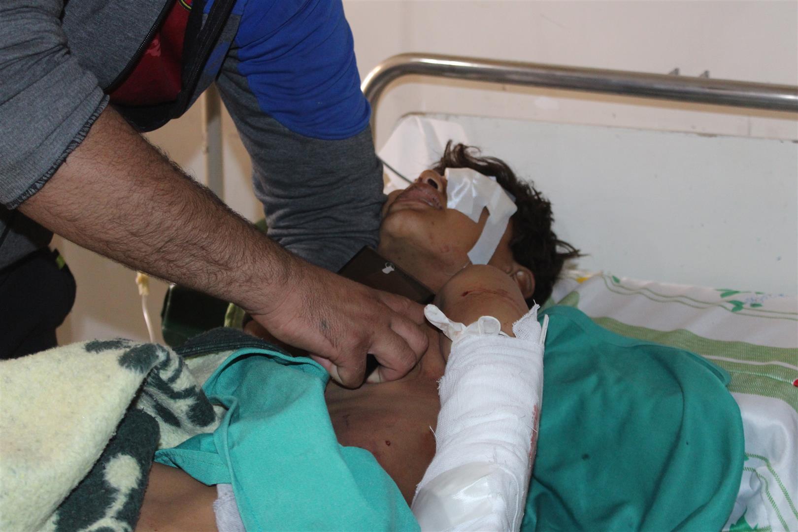 Tres niños muertos y siete heridos por explosión en Jasser Abyed