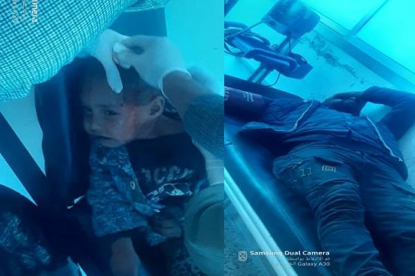 Niño de tres años herido en bombardeo en Ain Issa