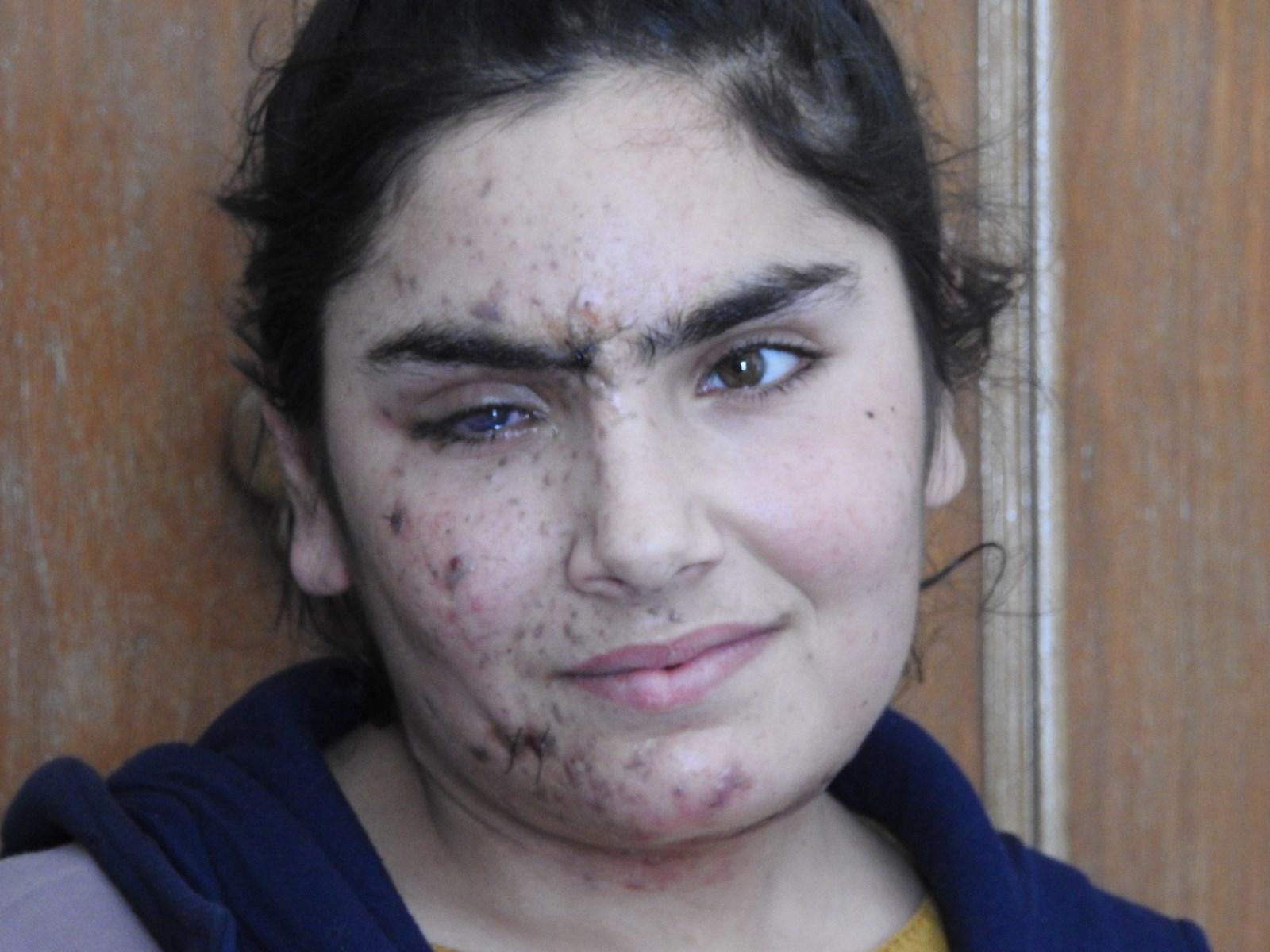 İşgalci devletin saldırılarında yaralananlar o günleri anlattı