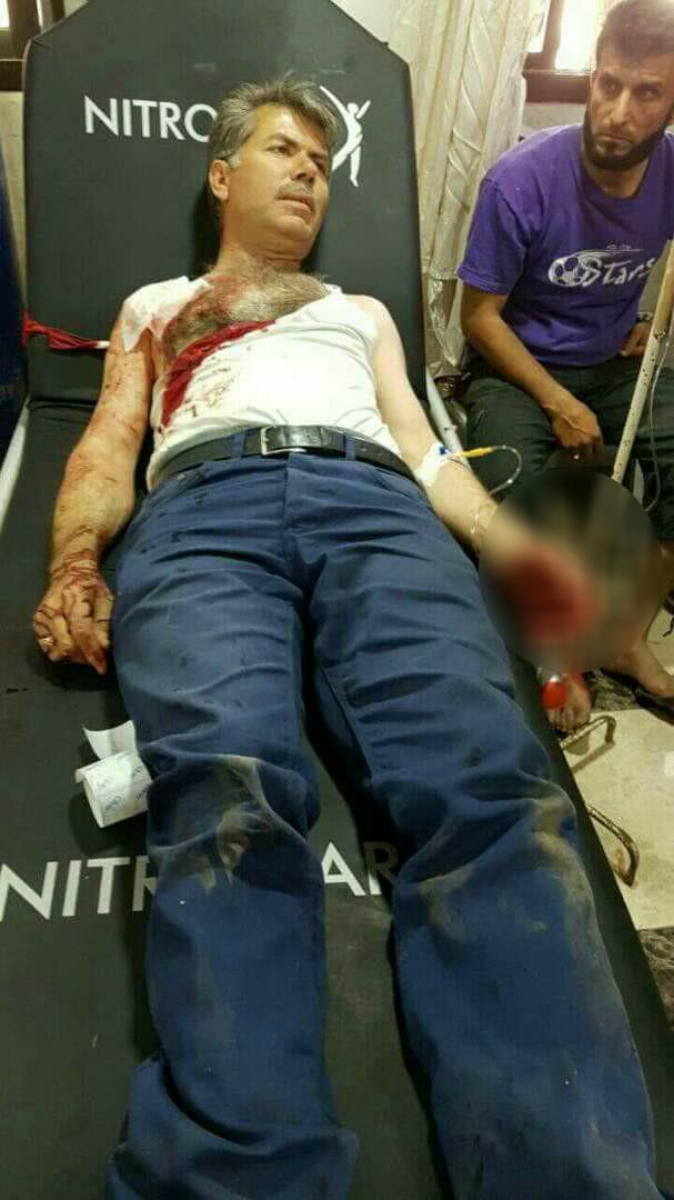 Bab'ta patlama: 9 ağır yaralı