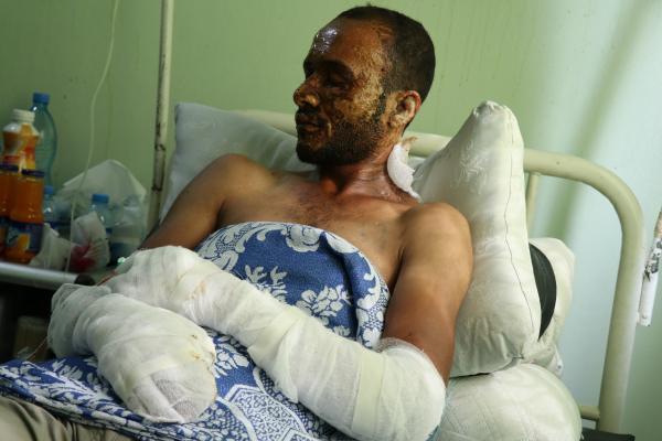 Serêkaniyê'deki yanık vakalarının yaraları gittikçe derinleşiyor
