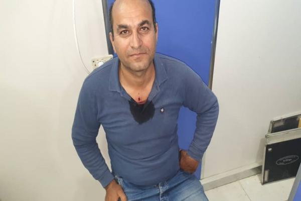 Ronahî TV muhabiri işgalcilerin saldırısında yaralandı