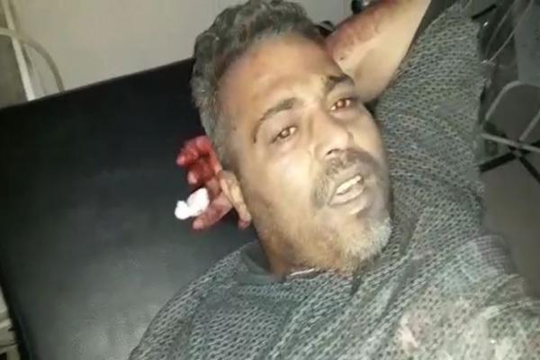 İşgalcilerin mayını bir sivili yaraladı